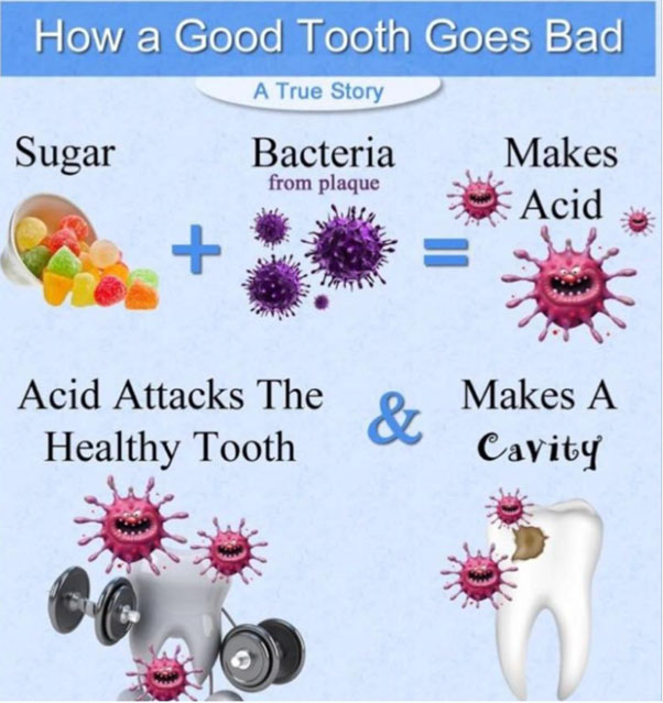 How A Good Tooth Goes Bad
