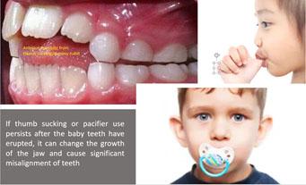Preventative Orthodontics 2